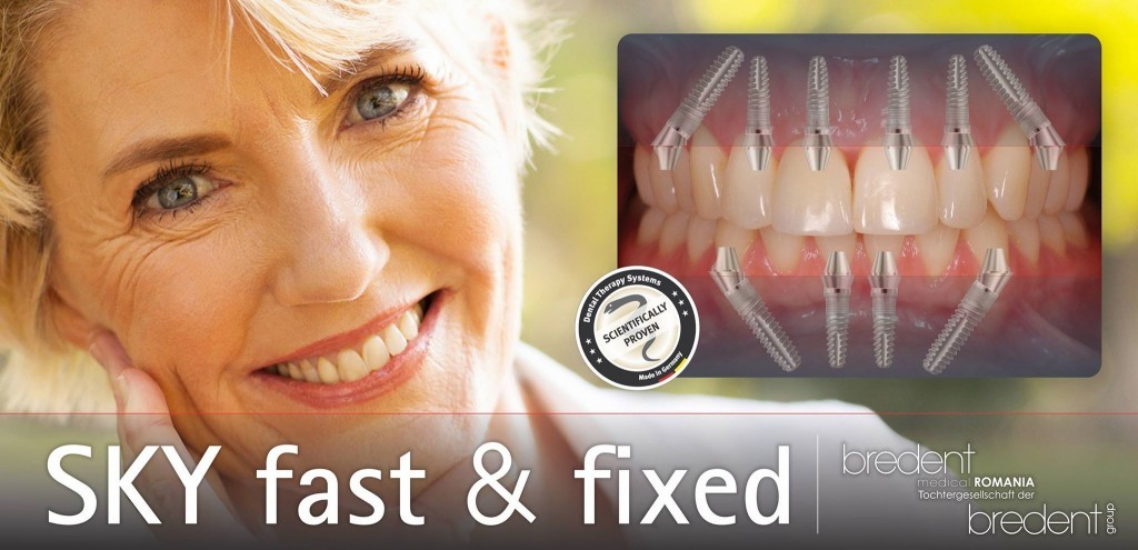 Teeth in a Day Dental Implants All on Four Six