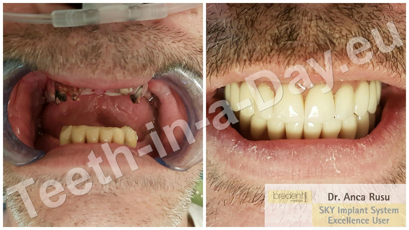 Teeth in a Day FAST and FIXED - Same Day Dental Implants!